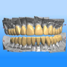Implant Dentist Grand Rapids